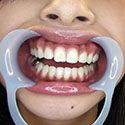 【歯フェチ】ゆあちゃんの美しい歯並びとキラっと光る銀歯を観察!