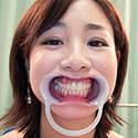 【歯フェチ】成宮いろはさんのケアの行き届いた歯観察!