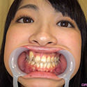 【歯フェチ】あやね遥菜ちゃんの歯を観察しました!